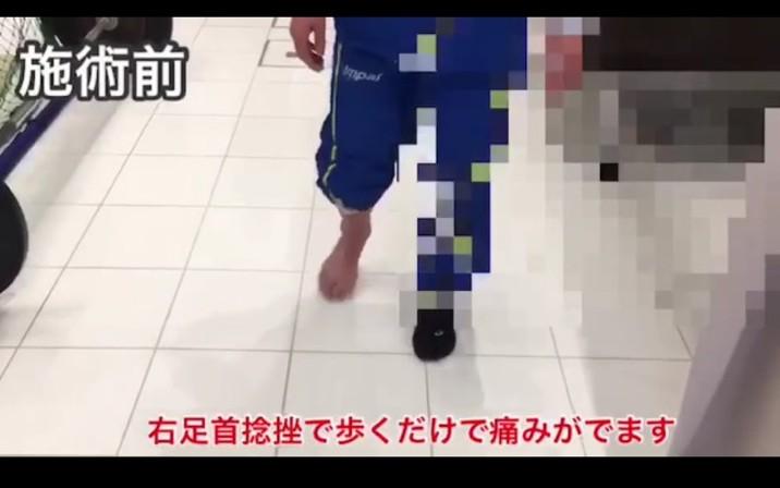 右足首の捻挫で来院